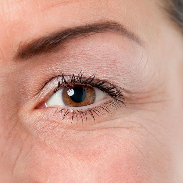 Augenlidstraffung bei Dr.med Martina Bayerl